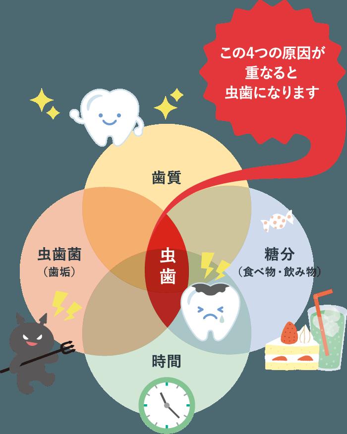 この4つの原因が重なると虫歯になります 歯質 糖分(食べ物・飲み物) 虫歯菌(歯垢) 時間
