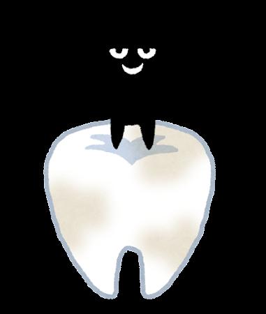 ①虫歯の重症化