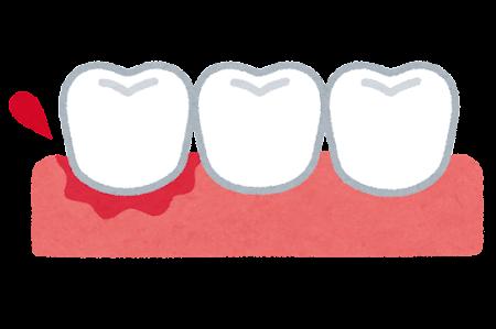 ④歯肉炎・歯周炎