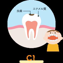 エナメル質う蝕(C1)