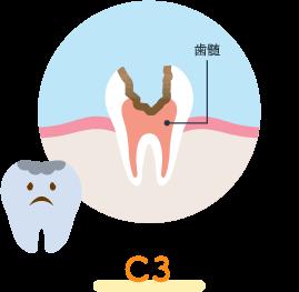 神経に達するう蝕(C3)
