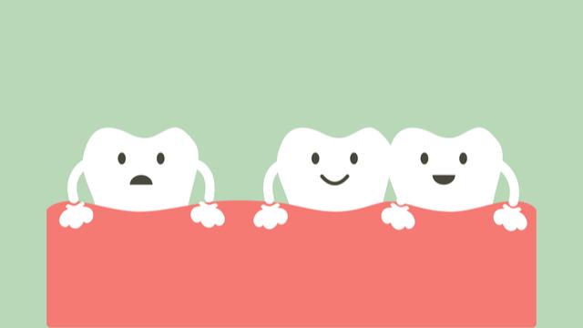 永久歯が生え揃ってからのすきっ歯は問題あり